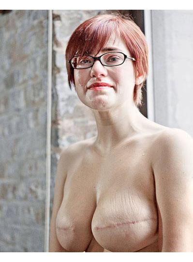 Breast Cancer David Jay Project Scar